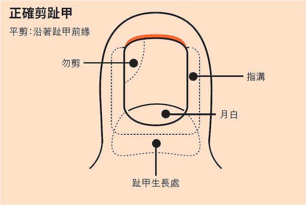 剪趾甲要沿着趾甲前缘平平地剪,留下可以抵抗旁边软组织的趾甲。