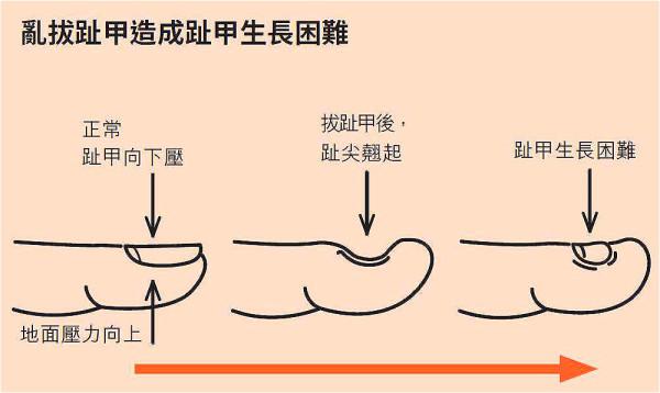 趾甲的切除一定要在有限度的范围内,随意破坏可能会造成永久、不可逆的后果。