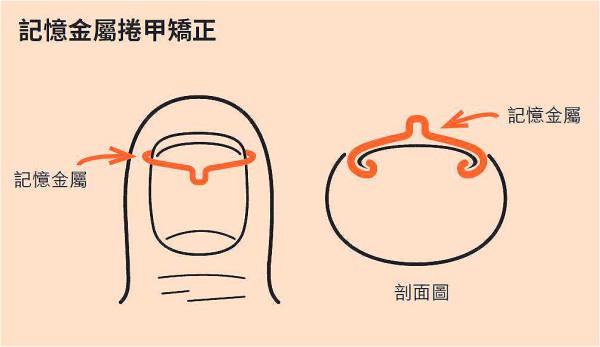 记忆金属有回复原来形状的惯性,能提供拉力把卷曲的趾甲拉平。