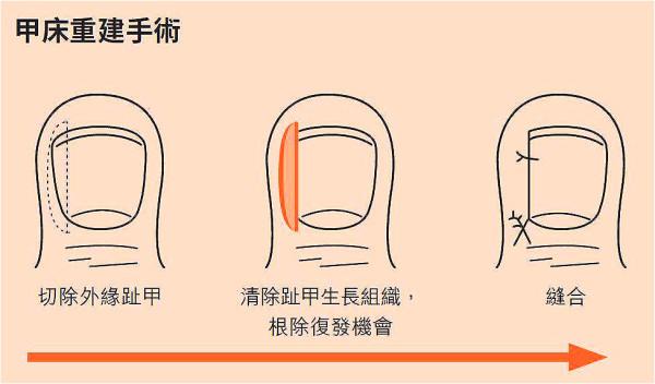 """""""甲床整形术""""属于门诊手术,局部麻醉,切除多余组织、缝两针即可。"""